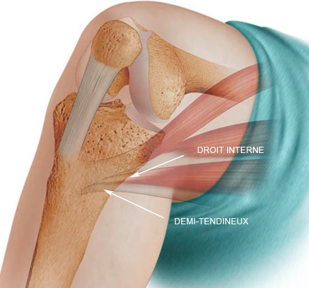 ligament interne genou