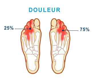mal aux doigts de pieds