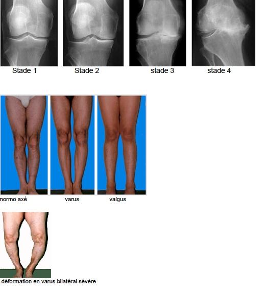 adhérence apres operation du genou